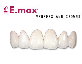 Emax crowns - veneers near me