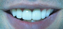 After - Laser Gum Lift