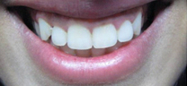 Laser Gum Lift - Before