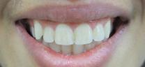 Laser Gum Lift - After