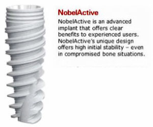 Nobel Biocare – Active Dental Implants