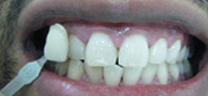 Zoom Whitening - After
