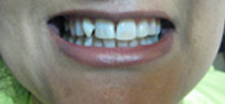 Mottling of Teeth Correction - Before