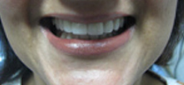 Mottling of Teeth Correction - After