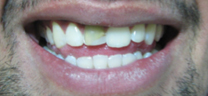 Cosmetic Tooth Colored Fillings - Before