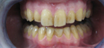 1 hr Zoom Advanced Teeth whitening - Before
