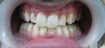 1 hr Zoom Advanced Teeth whitening - After