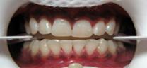 Before - Zoom Teeth Whitening