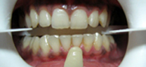 After - Zoom Teeth Whitening