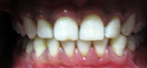 Zoom Advanced Power Whitening - After