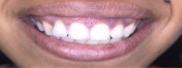 Gummy Smile correction with Laser Gum Lift - Before