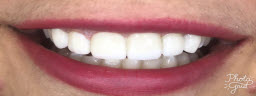 Smile makeover with porcelain veneers - After