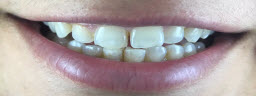 Smile makeover with porcelain veneers - Before