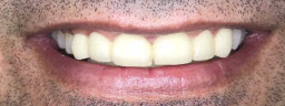 rehabilitation with metal free crowns bridge - After