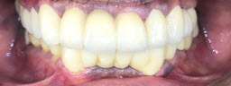 Full Mouth Rehabilitation with Metal Free Crowns - After