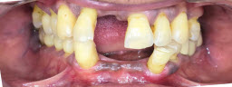 Full Mouth Rehabilitation with Metal Free Crowns - Before