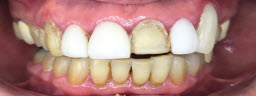 Full Mouth Smile Makeover with Metal Free Zirconia Crowns - Before