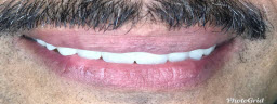 Smile Makeover with Metal Free Crowns - After