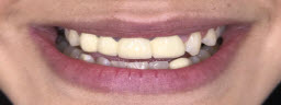 Smile Makeover with Metal Free Crowns and Teeth Whitening - Before