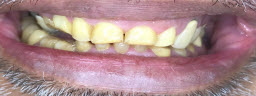 Full Mouth Rehabilitation with Metal Free Zirconia Crowns n Bridges After Raising The Bite.. - Before