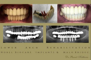 Lower Arch Rehabilitation with 6 Nobel Biocare Implants & Malo Bridge - Small