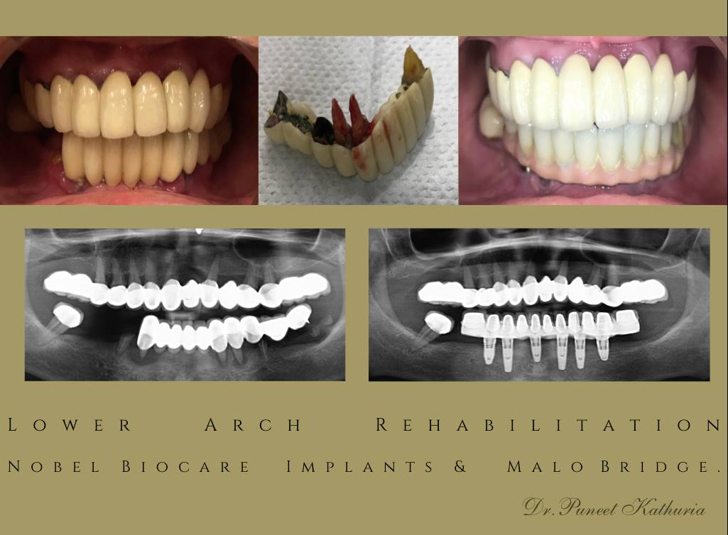 Lower Arch Rehabilitation with 6 Nobel Biocare Implants & Malo Bridge