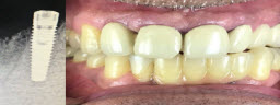 Lower front teeth replaced with dental implants and zirconia bridge - After