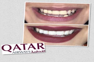 Smile Makeover - Qatar Airways - Small