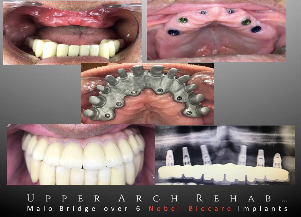 Upper Arch Rehabilitation