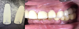 Upper back teeth restored with Dental Implants and Crowns - After