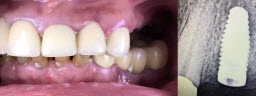 Upper back teeth restored with Dental Implants and Crowns - Before