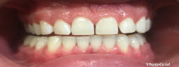 Zoom Advanced Whitening - After