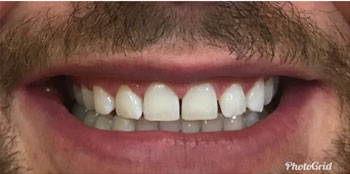 Teeth Whitening Cost Effective Treatment South Delhi India