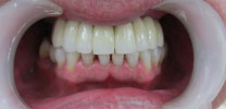 Full Upper Arch Restored With 8 Dental Implants in Delhi