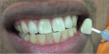 Zoom Teeth Whitening - Before