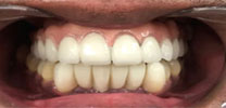 Upper Full Arch Restored With 7 Dental Implants & Malo Bridge