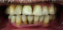 Restored Front Lower Tooth Replaced With Dental Implant