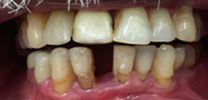 Restored Front Lower Tooth Replaced With Dental Implant in Delhi