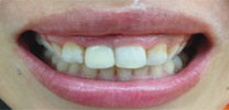 Multiple Upper Front Teeth Restored With Dental Implant