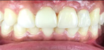 Multiple Missing Front Teeth Restored With Dental Implants