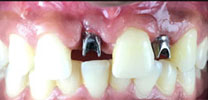 Multiple Missing Front Teeth Restored With Dental Implants in Delhi