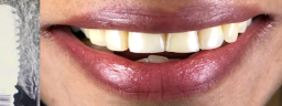 Dental Implants with Crown - After