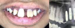 Front Teeth Implants - Before