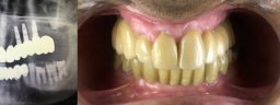 Rehabilitation Dental Implants - After