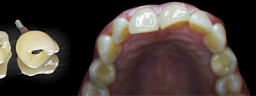 2 Premolars replaced with Dental Implants - After