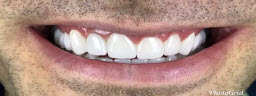 Complete Smile Makeover with Metal Free Crowns - After