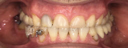 Complete Smile Makeover with Metal free Crowns - Before