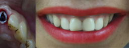 Front Smile Makeover done with Dental Implant & Metal Free Crown - After