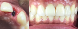 Front Smile Makeover done with Dental Implants & Metal Free Crowns - After