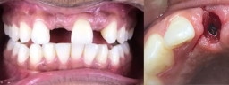 Front Smile Makeover done with Dental Implants & Metal Free Crowns - Before